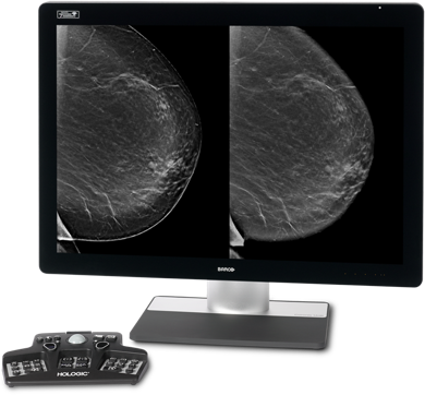 Make confident decisions with Intelligent 2D™ imaging technology