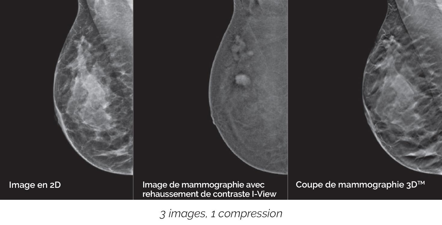 Détectez des cancers souvent invisibles sur les mammographies standards