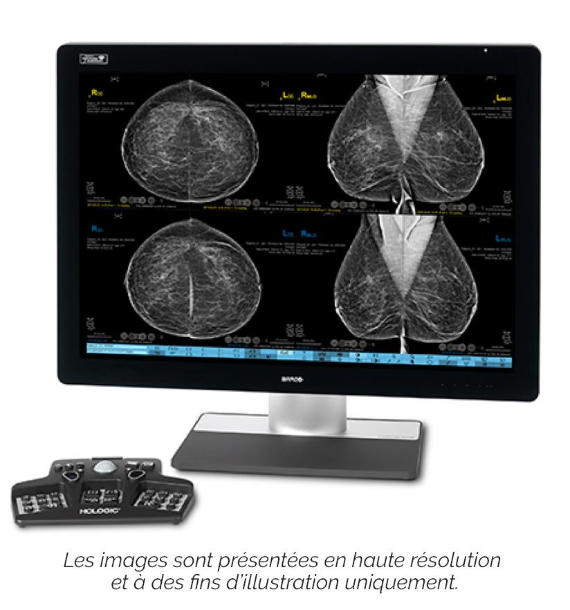 Un poste de travail de diagnostic conçu par les radiologues pour les radiologues
