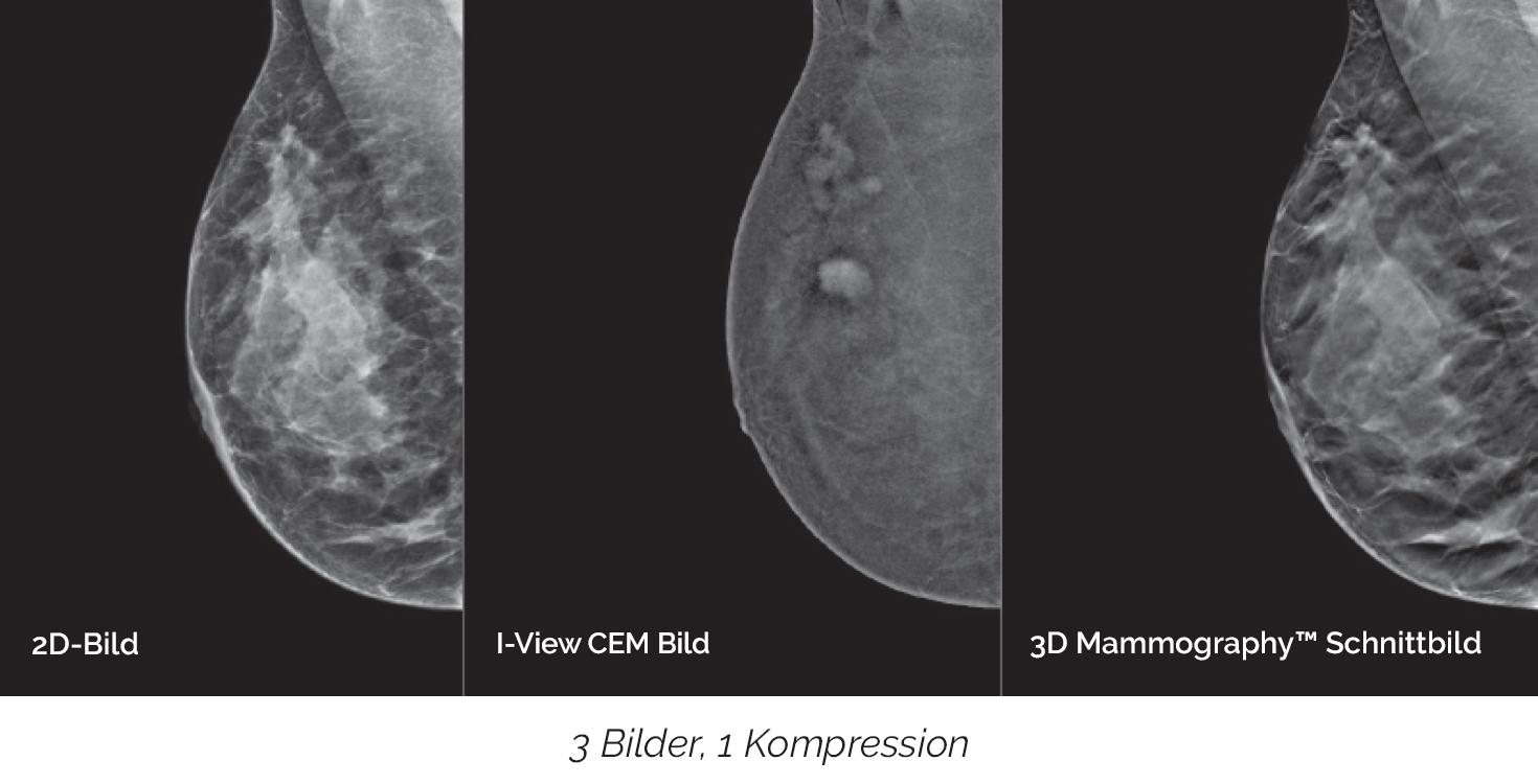 Erkennt Karzinome, die auf herkömmlichen Mammogrammen oft nicht sichtbar sind